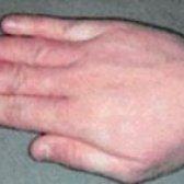 Алергія на порошок: симптоми та лікування