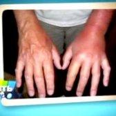 Алергія на укус оси: що робити?