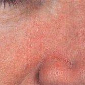Cеборейний дерматит на обличчі