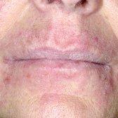 Що викликає почервоніння шкіри обличчя у чоловіків?