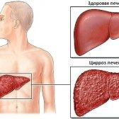 Цироз печінкі: причини, симптоми, Стадії цироз печінкі