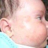 Діатез у новонароджених і грудних дітей