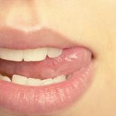 Герпес на губах, народне лікування