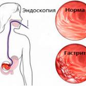 Хронічний гастрит. причини, розвиток, види, симптоми, лікування та профілактика хронічного гастриту.