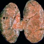 Хронічній гломерулонефрит: симптоми, діагностика, лікування