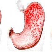 Ерозивнийгастрит шлунка