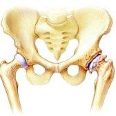 Як лікуваті остеоартроз кульшового суглобу
