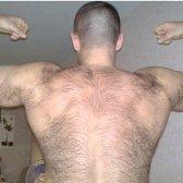 Як виявляється надлишок тестостерону у чоловіків?