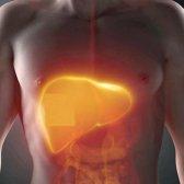 Як виявляються початкові симптоми і ознаки цирозу