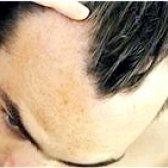 Коли з'являться ліки проти чоловічого облисіння?
