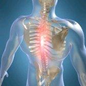 Лікувальна гімнастика при грудному остеохондрозі