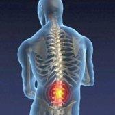 Лікувальна гімнастика при попереково остеохондрозі