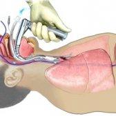Методи діагностики жкт
