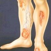 Методи терапії трофічних виразок нижніх кінцівок