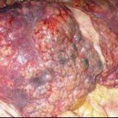 Народні засоби підвищення опірності організму вірусам і розвитку пухлин.