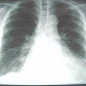 Набряк легень: причини, симптоми, лікування