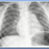 Пневмонія (запалення легенів), народне лікування