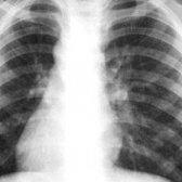 Туберкульоз, народне лікування