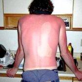 Засмага і сонячні опіки