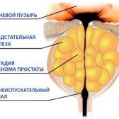 Симптоми і лікування ДГПЗ 1 ступеня