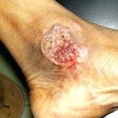 Туберкульоз кожи: фото, симптоми, лікування