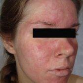 Алергічний дерматит на обличчі