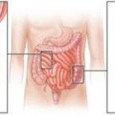Що робити при непрохідності кишечника?