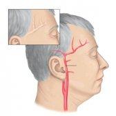 Діагностика та лікування височного артериита