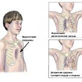 Як лікується запала грудна клітка у чоловіків?