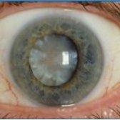 Зростанню катаракта - види і особливості