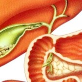 Жовчокам'яна хвороба: симптоми, лікування, дієта