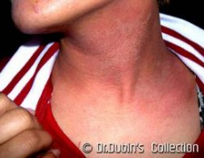 Алергія на полин: лікування і симптоми