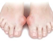 Артрит пальців на ногах