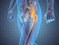 Артроскопія тазостегновіх суглобів