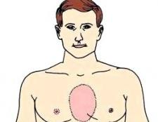 Біль у грудній клітці, причини болю в грудній клітці