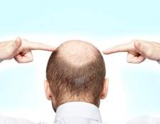 Що робити, якщо на голові з'явилася залисина?
