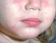 Дієта и народні засоби при атопічному дерматіті у дітей и дорослих