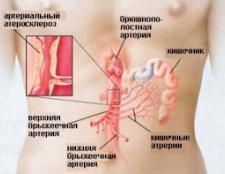 Ішемічна хвороба кишечника