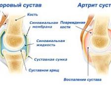 Мазь від артриту колена