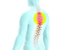 Особливості остеохондрозу грудного відділу