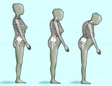 Остеопенія: симптоми, лікування остеопенії