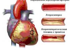 Причини атеросклерозу коронарних артерій, и методи его лікування