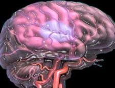 Причини и методи лікування церебрального атеросклерозу