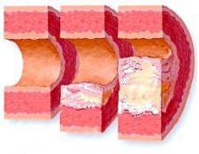 Симптоми и лікування атеросклерозу Судін ніжніх кінцівок?