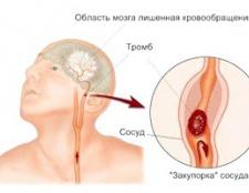 Симптоми и лікування ішемічного інсульту мозком