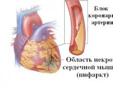 Симптоми и методи лікування інфаркту міокарда