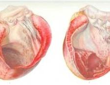Віді, причини и лікування аневризми міжпередсердної перегородки