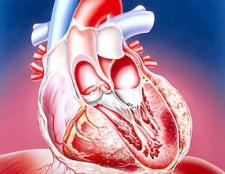 Що может віклікаті інфаркт задньої стінкі міокарда?