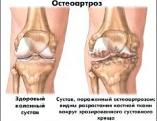 Методи лікування при остеоартрозі колінного суглобу