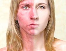 Чи можна повністю вилікувати атопічний дерматит?